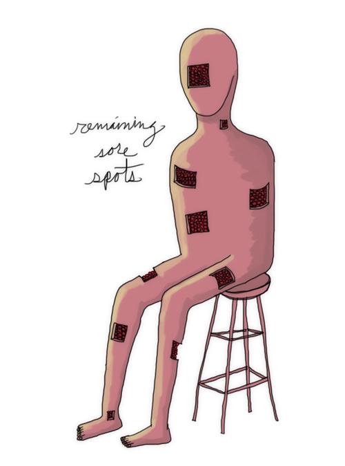 remaining sore spots